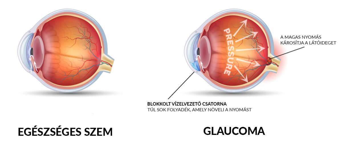 glaucoma homályos látás